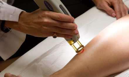 Υπ. Υγείας: Μόνο από ειδικευμένους δερματολόγους και πλαστικούς η αποτρίχωση με λέιζερ