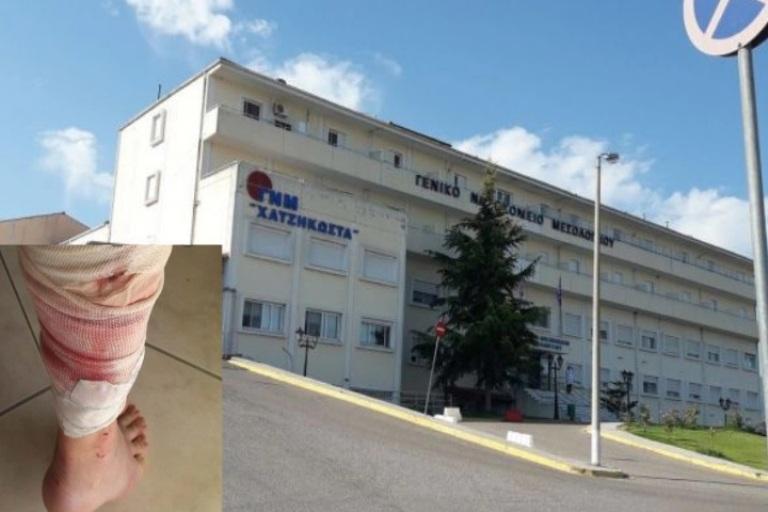 Τρόμος για 68χρονη Μεσολογγίτισσα – Στο νοσοκομείο μετά από δάγκωμα σκύλου στο πόδι!
